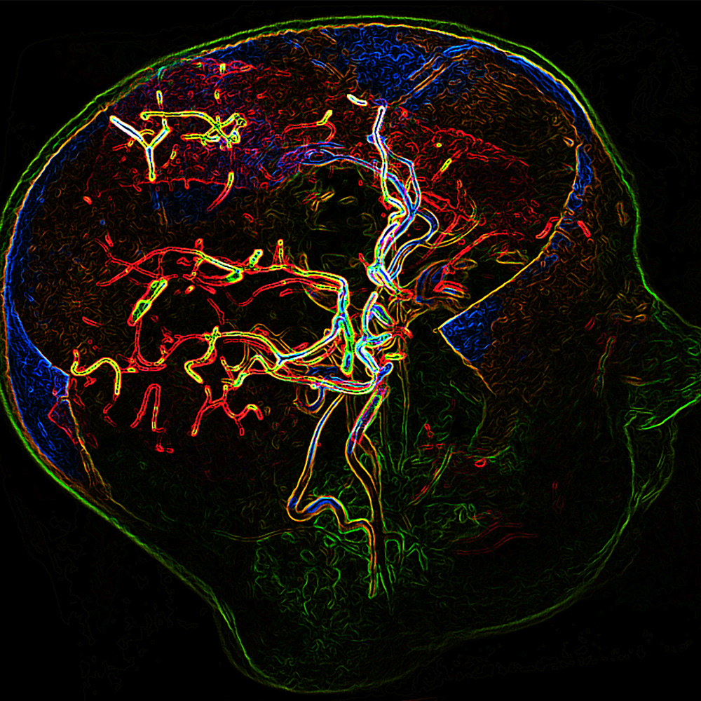Blood vessels of the human brain