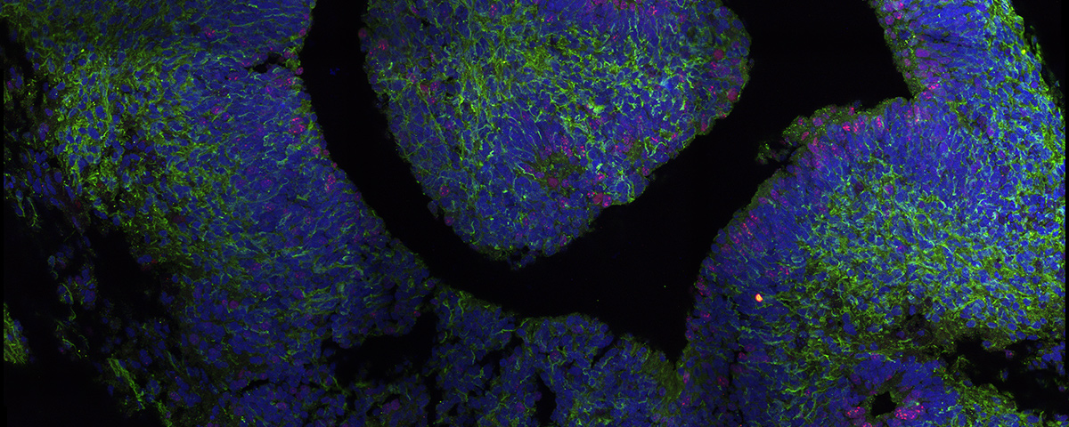 3D brain organoid