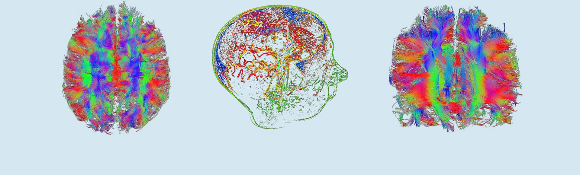 Das DZNE – Neurodegenerative Erkrankungen verstehen, Ursachen entschlüsseln, Therapien entwickeln